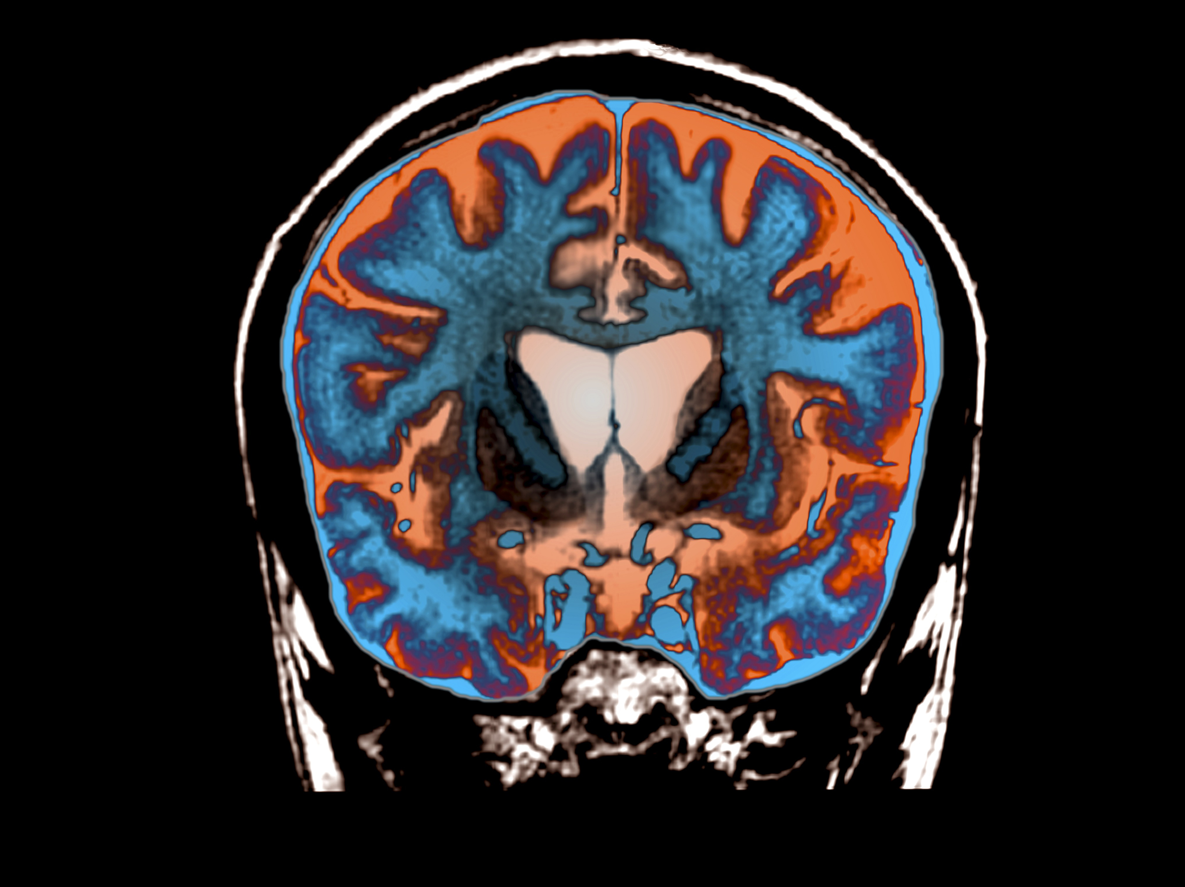 Scans Show Possible Link Between Brain >> An Mri Scan Shows Signs Of Atrophy In The Brain Of A Patient With